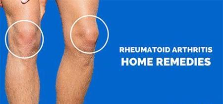 rheumatoid arthritis remedies 1 - Home Remedies for Rheumatoid Arthritis