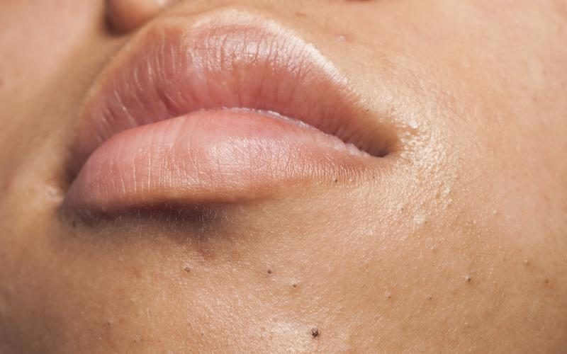 Skin Bumps On Face Get Rid Of Naturally