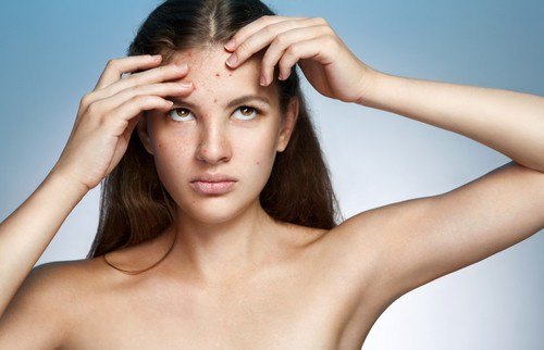 Comedonal Acne Treatment - What Is Comedonal Acne? 5 Ways To Control Comedonal Acne