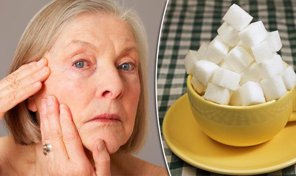 Old woman 600925 - 7 Foods that Leave your Skin with Wrinkles