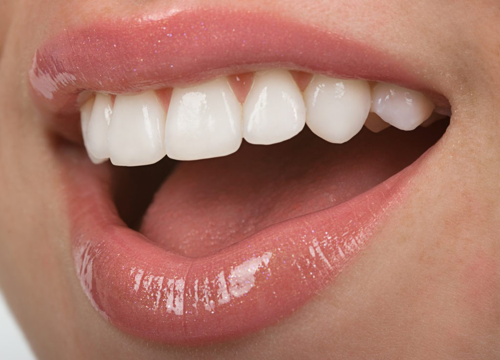 keram vinir 1 1024x737 - The Shape Of Your Teeth Indicate Your Personality