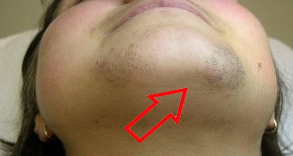 Embarrassing Chin Hair No Woman Should Ever Ignore