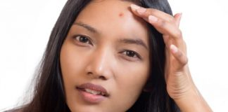 Various Types Of Acne And How To Identify Them