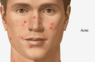 acne 400 - Various Types Of Acne And How To Identify Them