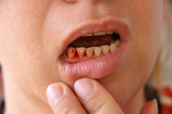 What Are The Diseases Caused By Nutritional Deficiencies