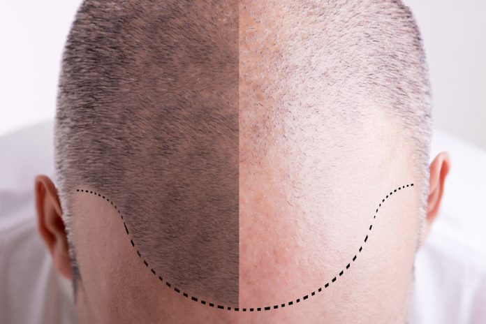 Benefits of Stem Cell Hair Loss Treatment