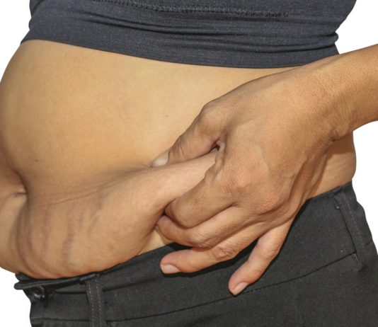 Home Remedies to Get Rid of Loose Skin after Pregnancy