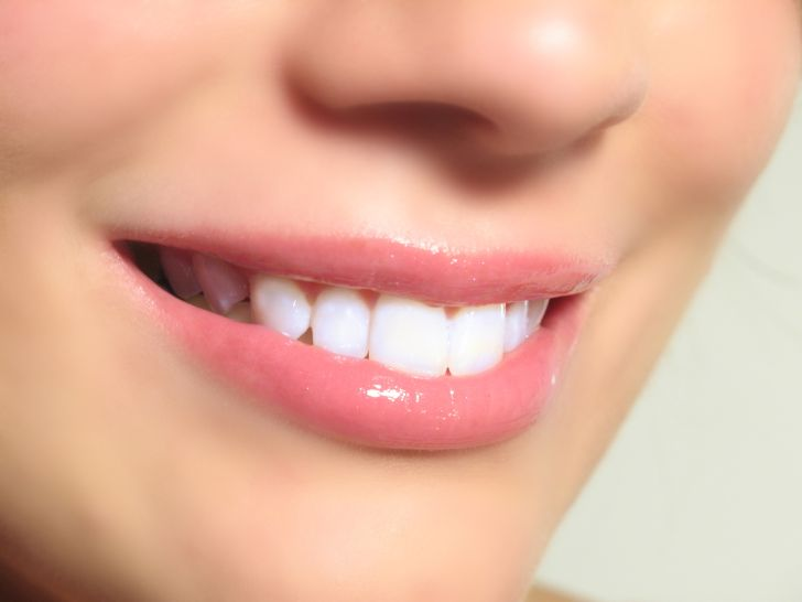 How Do You Get White Spots On Your Teeth - How to Get Rid Of  White Spots from Your Teeth