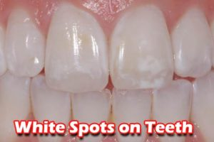 How to Get Rid Of  White Spots from Your Teeth