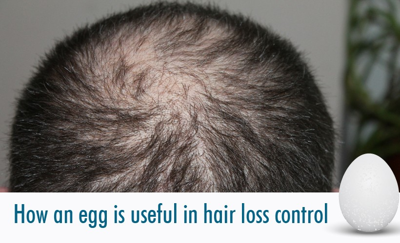 hair 248049 1920 - How is an egg useful for hair loss control?