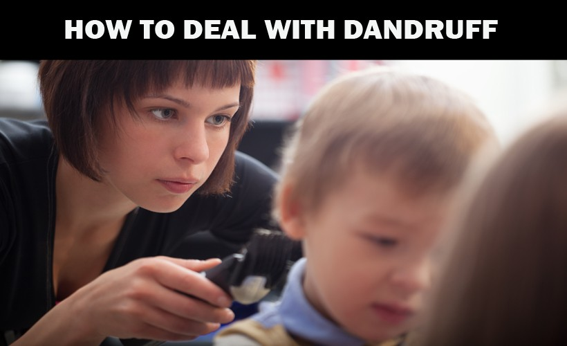 How to deal with dandruff?