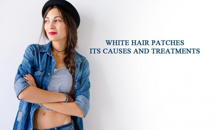 White Hair Patches- Its Causes and Treatments