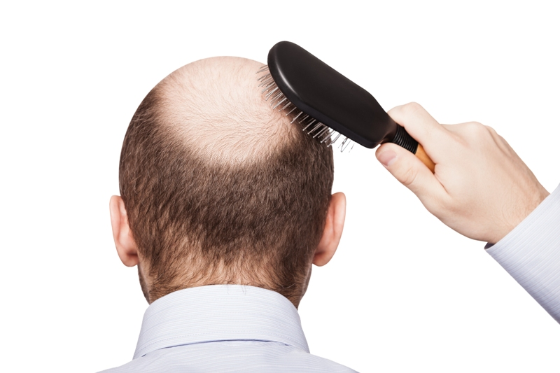 shutterstock 117818656 - How to Use Argan Oil for Hair Growth?