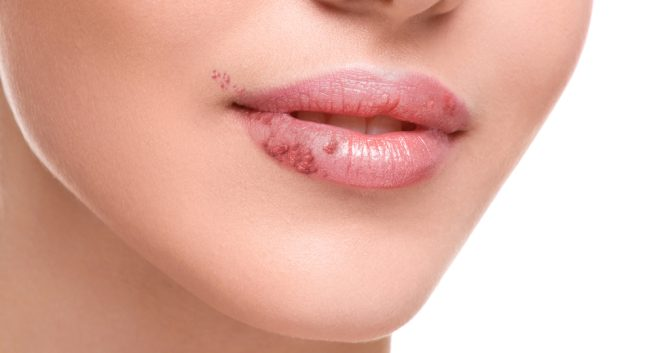 diseases herpes THS - 15 Easy Home Remedies To Treat Herpes