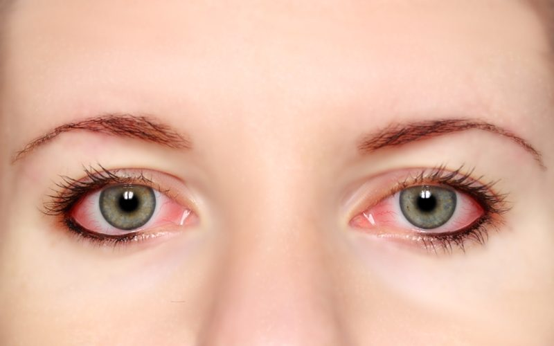 25 Tips To Take Care Of Your Beautiful Eyes Daily