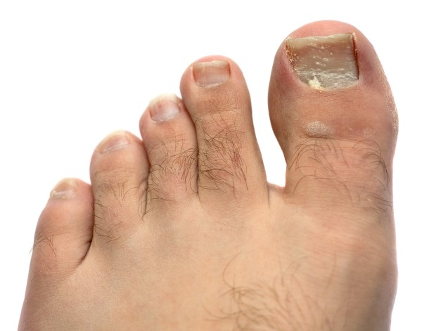 15 Home Remedies to Treat Toenail Fungus - 15 Home Remedies to Treat Toenail Fungus