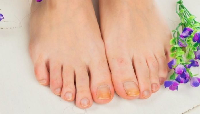 15 Home Remedies to Treat Toenail Fungus