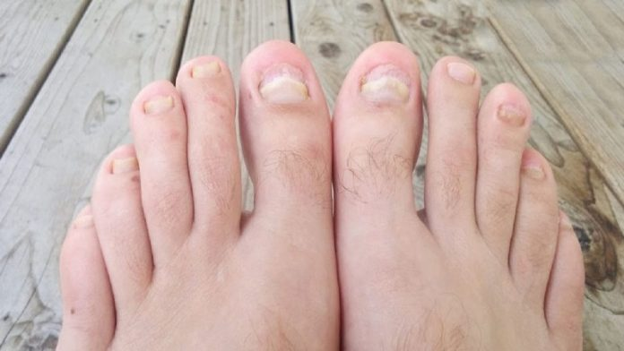 Top 10 Essential Oils for Toenail Fungus