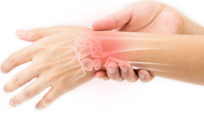 Carpal Tunnel Syndrome: Symptoms, Causes, Treatment