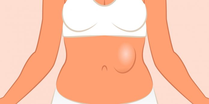 10 Effective Home Remedies for Hernia