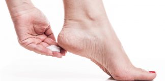 Some of the homemade remedies for Cracked Heels