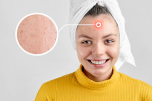 What Is Pregnancy Acne?