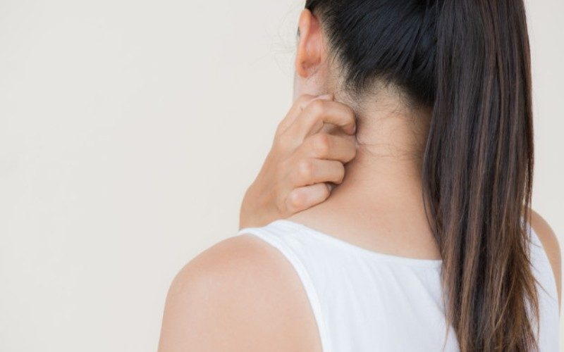 Differences between eczema and psoriasis