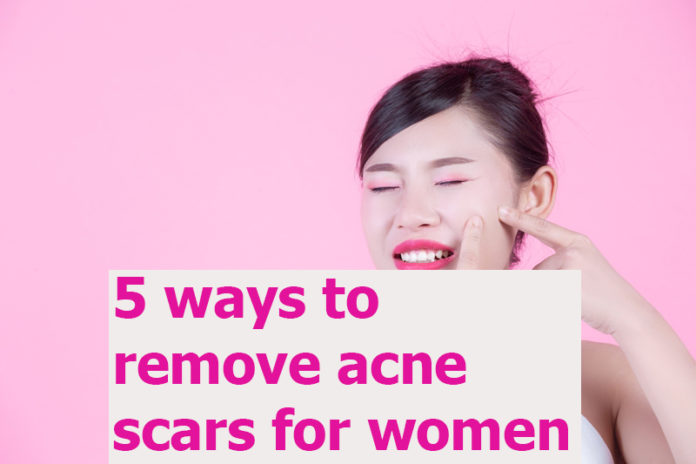 5 ways to remove acne scars for women