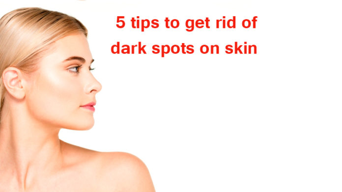 5 tips to get rid of dark spots on skin