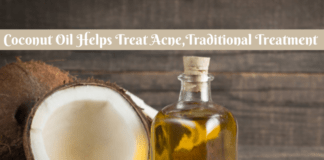 Coconut Oil Helps Treat Acne,Traditional Treatment