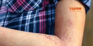 5 Home Remedies for Rashes to Try Today